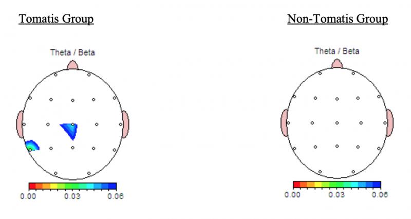 Spektrinė smegenų analizės žemėlapis: FFT galios santykio grupė t-testas (p-reikšmės)